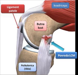 povreda ligamenata